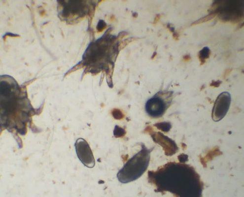 Gli acari con le loro uova visti al microscopio.