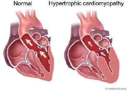 differenza tra un cuore normale e uno con la miocardiopatia.